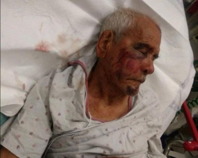Woman Beats a 91-year old Mexican man with a brick, tells him to 'go back to your country'