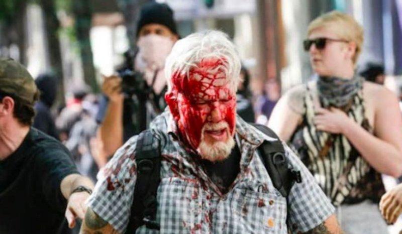 Two more Oregon men left bloody after violent antifa attack at Portland protest