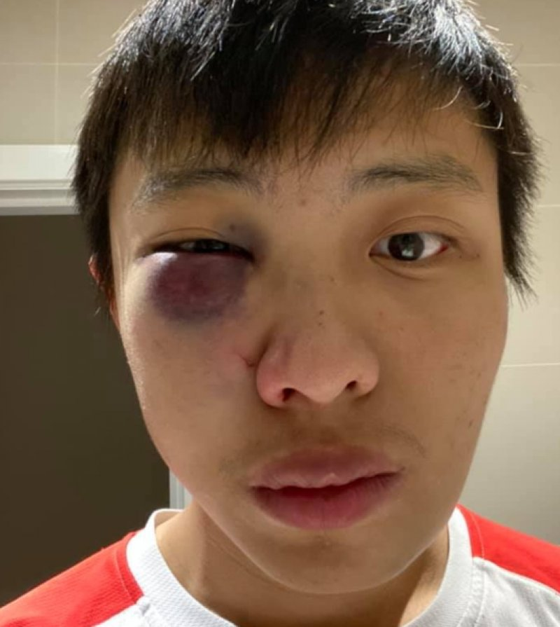 East Asian student assaulted in 'racist' coronavirus attack in London