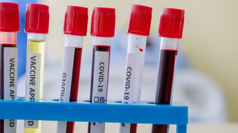 Your risk of severe COVID-19 may be affected by blood type, new genetic analysis suggests