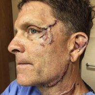 Man injured by bear near Aspen recounts encounter: It was all instantaneous   VailDaily.com