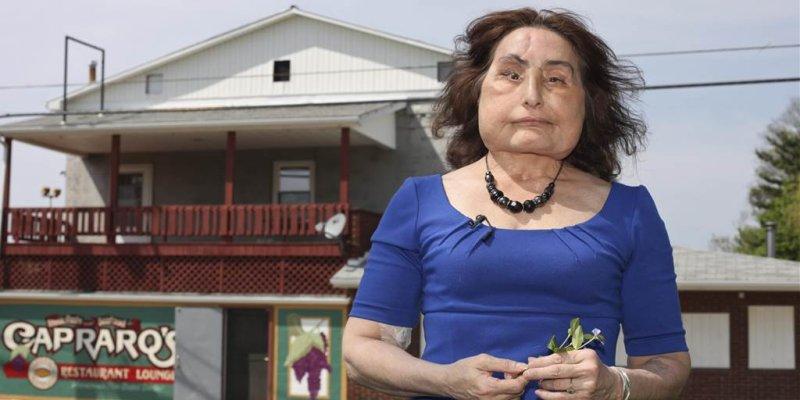 Connie Culp, first face-transplant recipient in U.S. dies at 57
