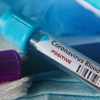 Politicizing the Coronavirus Outbreak